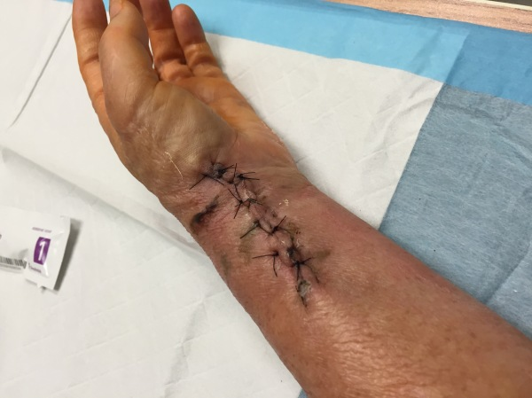 Dinah Houston's Wrist Update 2
