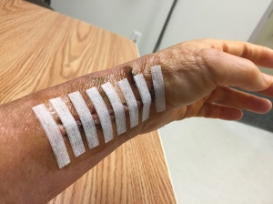 Steri-Strips before the pink cast.